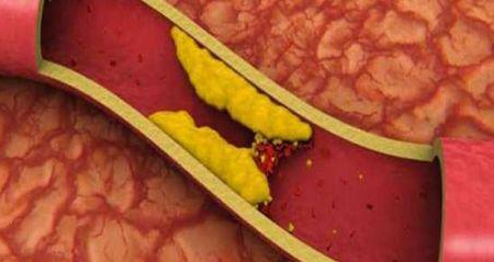Επιτέλους! Καρδιοχειρουργός μιλάει για την απάτη της χοληστερίνης